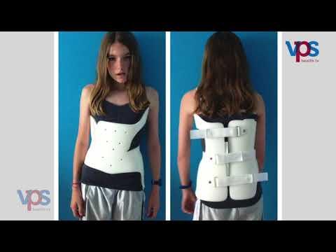 Scoliosis e osteochondrosis questo