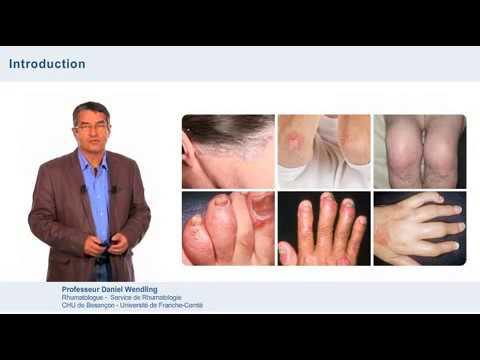 Atopitchesky la dermatite chez lenfant a guéri