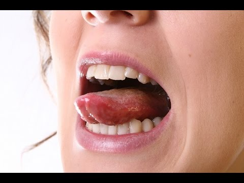 Video TMJ Disorder Treatment