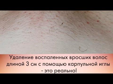 Как выровнять тон лицо от пигментных пятен