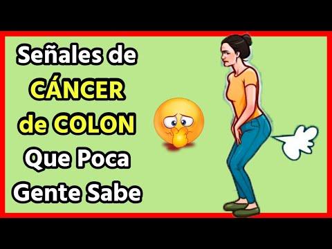 Simptome cancer de vezica urinara