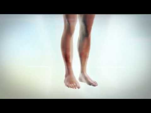 Video How To: Spot the Signs of Vascular Disease