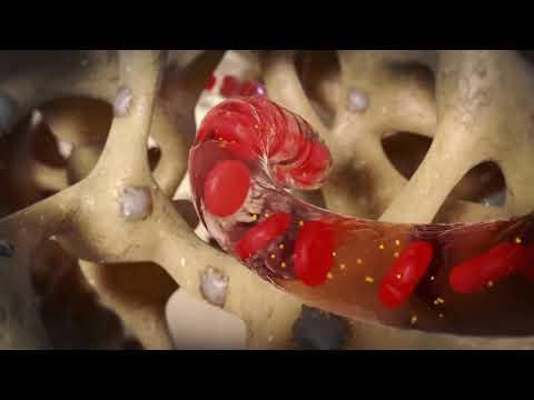 Perché ferire la prostata negli uomini