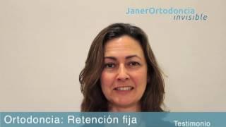 Arcos linguales: la retención más segura