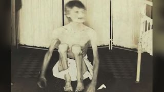 Rare Photos Taken From Old Insane Asylums Show Their Harsh Conditions