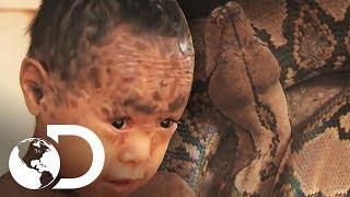 El niño serpiente   Mi Cuerpo, Mi Desafío l Discovery Latinoamérica