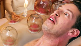 The Try Guys Try FIRE Cupping