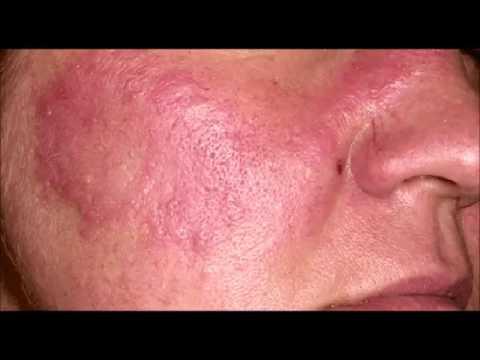 Lutilisation du goudron au traitement du psoriasis