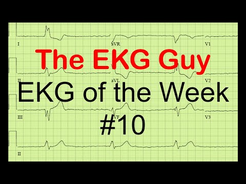EKG of the Week #10