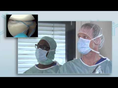 Behandlungen für Hüftgelenk durch das Verfahren Bubnovskaya