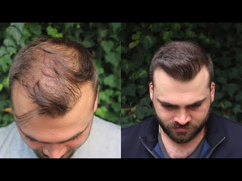Hair Transplant, with 3040 Grafts | EXTREME TRANSFORMATION from 0 days to 10 Months Result
