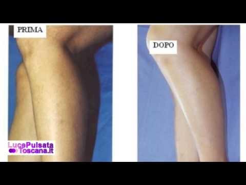 Operazione a bastonatura di posizione di vene