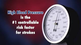 How to Prevent A Stroke with Dr. Richard Green