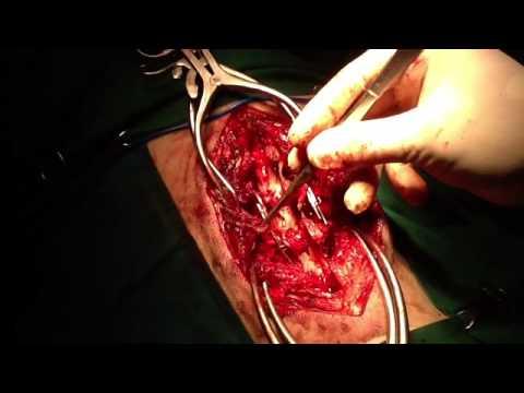 Ejercicios para las consecuencias de la columna cervical