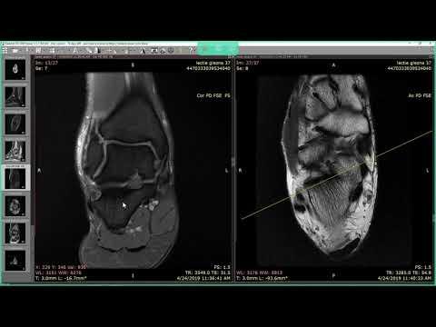 Tratamentul artrozei hipertensiunii