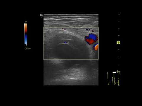 Лечение натальная травма шейного отдела позвоночника у новорожденных