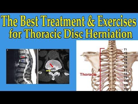 Wie man trainiert mit Osteochondrose