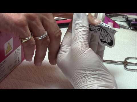 Die Salbe von gribkow im Anus