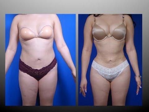 Plastic surgery dibdib Vladivostok