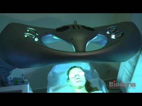 Tratamentul funcțional al sindromului umărului