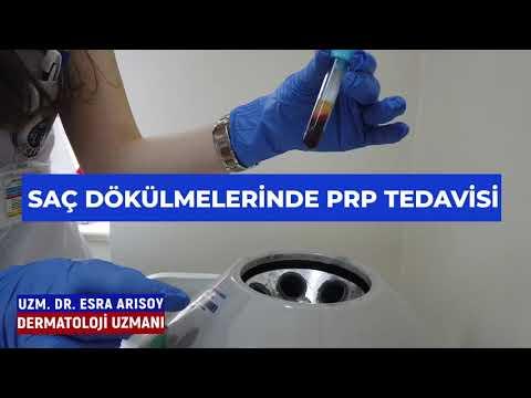 Saç Dökülmelerinde PRP Tedavisi - İzmir Ekol Hastanesi