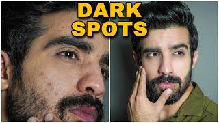 Remove DARK SPOTS NATURALLY| ACNE SCARS, HYPERPIGMENTATION, BLACK SPOTS, ACNE MARKS | HINDI|