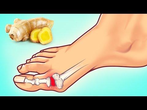 Rotura de ligamentos de la rodilla consecuencias sin tratamiento