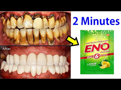 apply eno and make instant white teeth in 2 minutes teeth wh