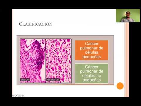 Cancer colon droit pronostic
