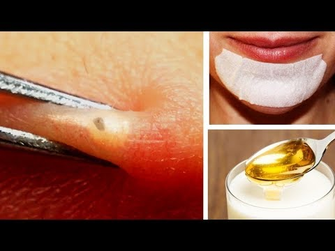 How to Remove Blackheads Around Mouth