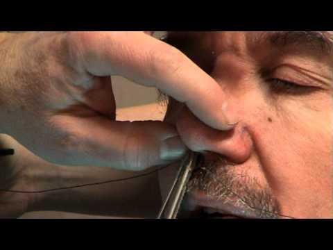 Trattamento di dottore di varicosity