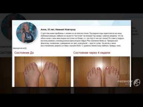 Как вывести мозоль на косточке пальца ноги