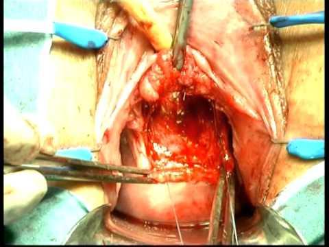Leczenie Chirurgiczne Przetok Cewkowo-Pochwowych