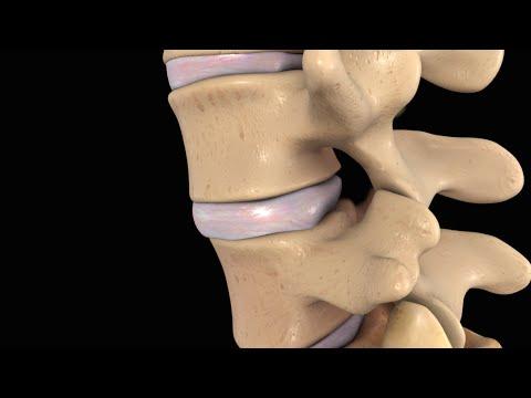 Zervikale Osteochondrose instabile Form