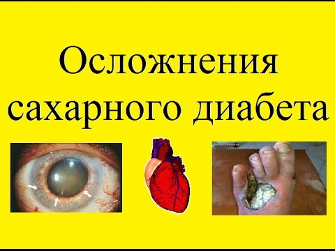 Диагностика диабета инвитро