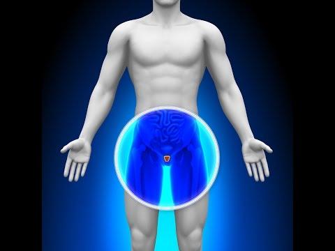 Für Prostata-Analyse Einpflanzen