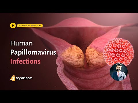 Human papillomavirus infection strains
