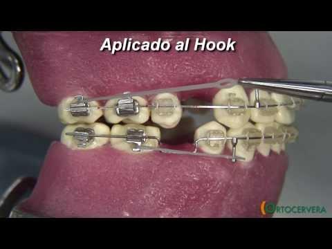 ORTOCERVERA / Ortodoncia: Asas en U - Compensación Oclusal - Módulos y Elásticos