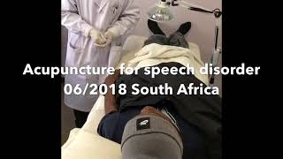 Acupuncture for Post-stroke language disorders