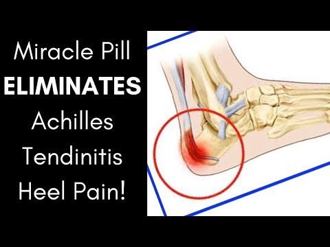 Artrózis kezelése nagyban