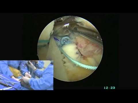 All-Inside Double Bundle ACL Reconstruction