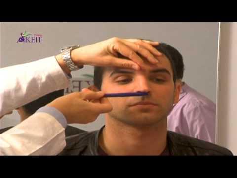 Infarkti i miokardit dhe hipertension, edemë pulmonare