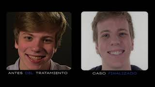 Q Dental: Marco Beauty DSD - Eduardo de la Torre