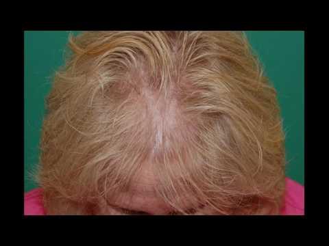 Bumili ng hair mask para sa density