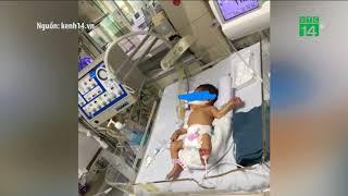 VTC14 | Mẹ phá thai rồi vứt bỏ, bé 32 tuần được nhóm tình nguyện cứu sống