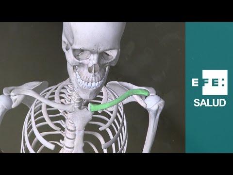 No esteroideo para el dolor de espalda
