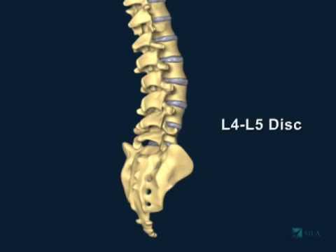 Dopo scoliosis operazione di spina dorsale