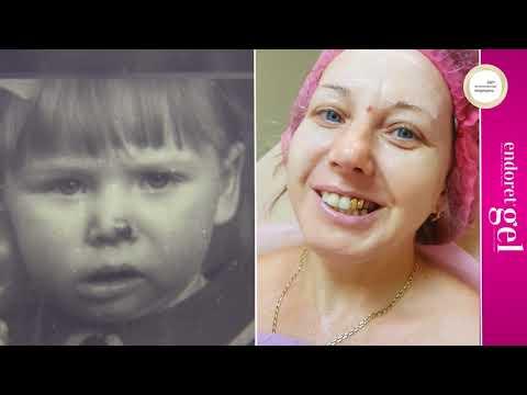 Коррекция аплазий нижней челюсти