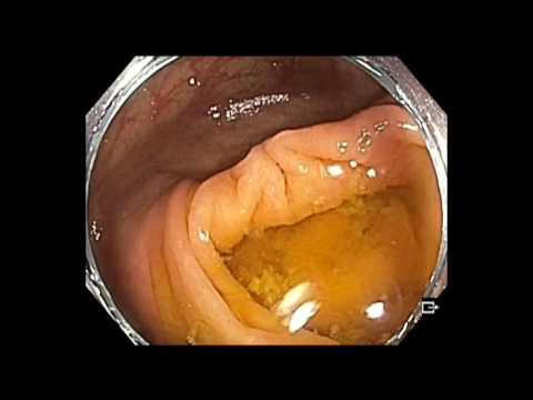 Colonoscopy: Cecum - Subtle lesion - Sessile serrated adenoma