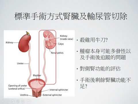 泌尿道上皮癌的治療與追蹤(王樹吉醫師)